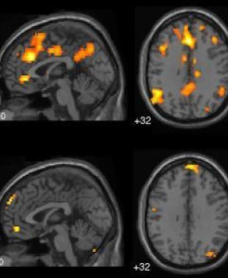 Le cerveau aux commandes de notre santé