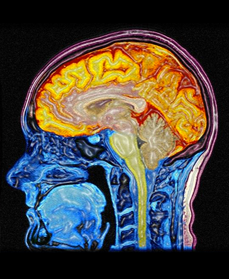 Lire dans les pensées grâce à l'imagerie cérébrale